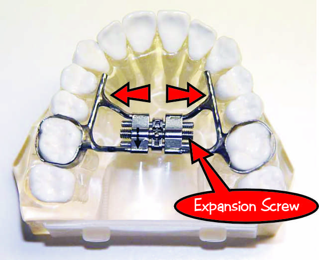 What is a Rapid Palatal Expander? | Ask an Orthodontist com