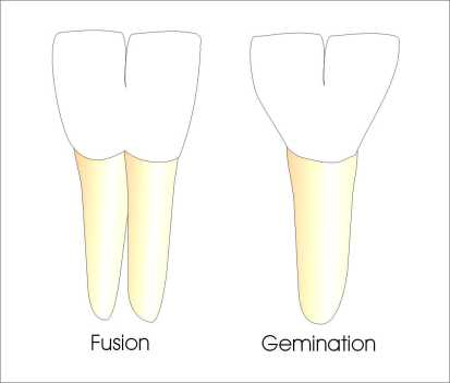 Tooth Fusion & Gemination
