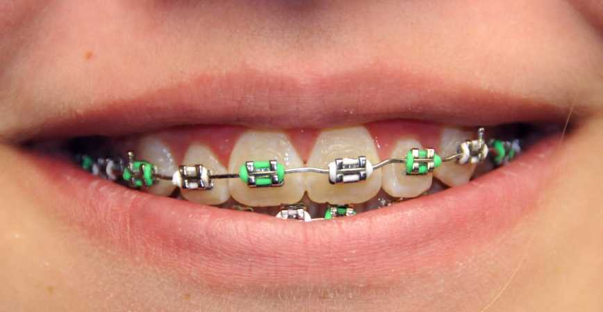 What Colors Do Braces Come In Ask An Orthodontist Com