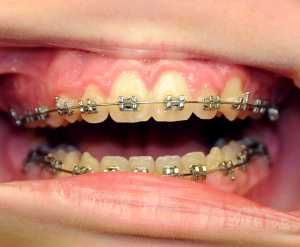 Tooth Mamelons Removed