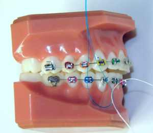 Using a Floss Threader with Braces