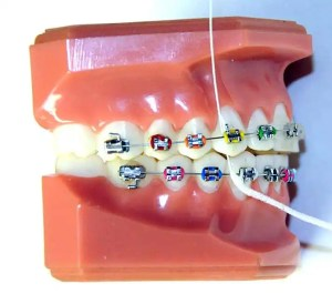 Using Superfloss with Braces