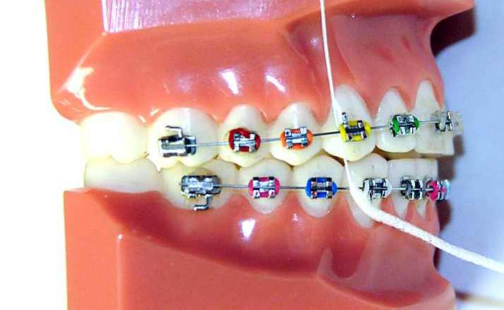 How do you floss with braces ask an orthodontist answering your orthodontic dental questions solutioingenieria Choice Image