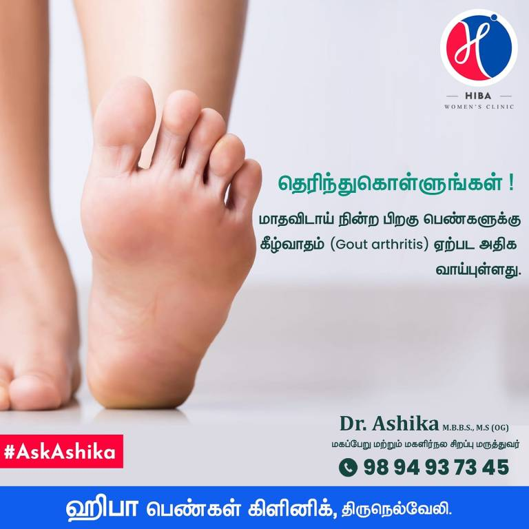 Read more about the article Gout Arthritis / ஆஸ்டியோ-ஆர்த்ரைடிஸ்