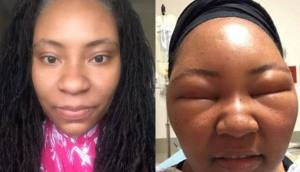 Before and After photos of a lady of african background with an allergy reaction from hair dye
