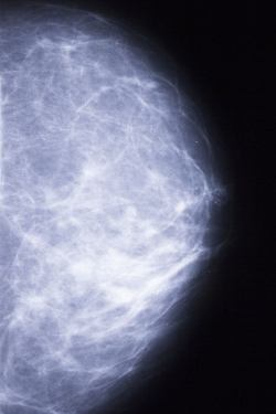 Breast Cancer misconceptions - mammogram side view of the female breast.
