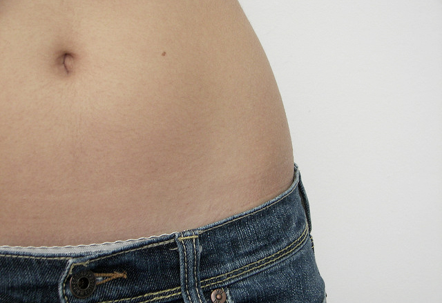 Tummy Tuck cost in sg