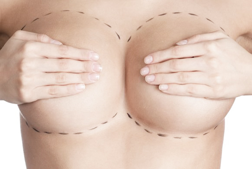 most common plastic surgeries Singapore - breast job