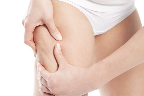 plastic surgery Singapore - liposuction