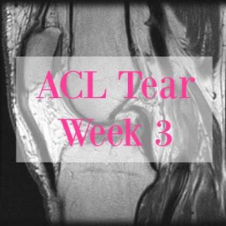ACL Tear Week 3