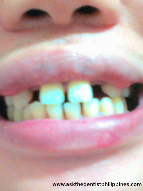 Bungi ang lateral incisors