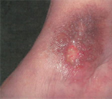 venous-stasis-ulcer1