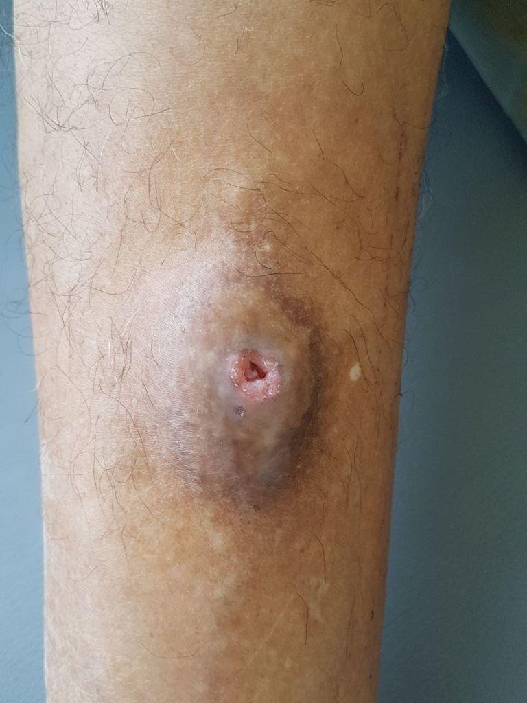 Nodular Hidradenoma Case of Rare Localization