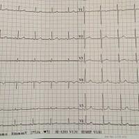 https://i1.wp.com/asploro.com/wp-content/uploads/2019/12/Fig-2_The-EKG-at-admission.jpg?resize=200%2C200&ssl=1