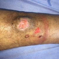 https://i1.wp.com/asploro.com/wp-content/uploads/2019/12/Fig-3_Extension-of-ulceration-after-skin-biopsy..jpg?resize=200%2C200&ssl=1