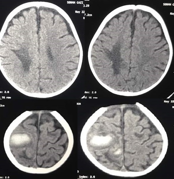 Perforated Mesenteric Cyst with Sepsis and Neurological Complication in a 9 Month Old Child