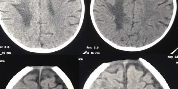 https://i1.wp.com/asploro.com/wp-content/uploads/2020/03/Fig-2_Perforated-Mesenteric-Cyst-with-Sepsis-and-Neurological-Complication-in-a-9-Month-Old-Child.jpg?resize=600%2C300&ssl=1