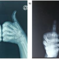 https://i1.wp.com/asploro.com/wp-content/uploads/2020/03/Fig-3ab_The-X-Ray-of-the-hands-face-and-profile-does-not-objectify-a-tumoral-process-under-a-nail.jpg?resize=200%2C200&ssl=1