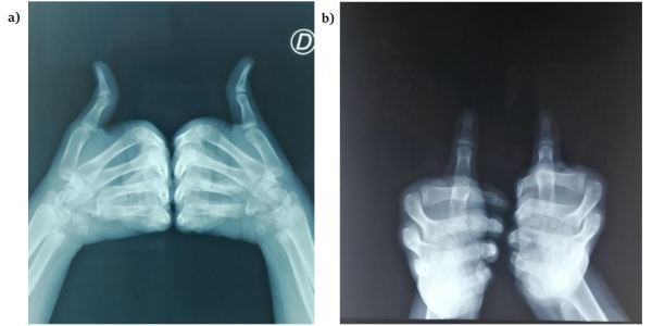 https://i1.wp.com/asploro.com/wp-content/uploads/2020/03/Fig-3ab_The-X-Ray-of-the-hands-face-and-profile-does-not-objectify-a-tumoral-process-under-a-nail.jpg?resize=600%2C300&ssl=1