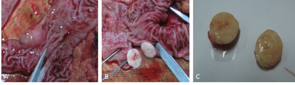 Early Diagnosis and Treatment of a Small Gastric Stromal Tumor – A Case Report and Literature Review