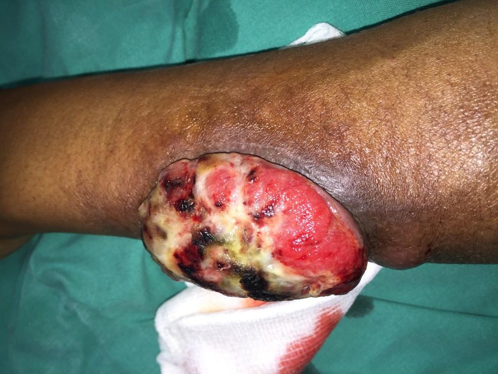 Pulse Treatment Using Azithromycin in HIV/AIDS-Associated Solitary Tumor-Like Bacillary Angiomatosis
