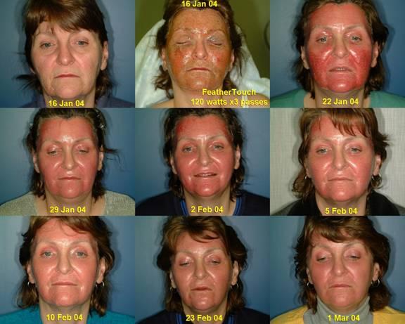 Blue Light Acne Treatment