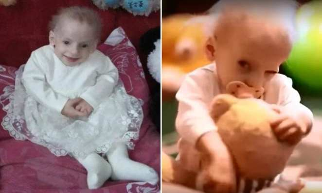 8-year-old girl in Ukraine becomes the youngest person in the world to die of early old age