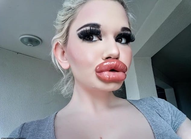 Bulgarie: elle subit plusieurs injections pour grossir ses lèvres, le résultat est horrible (vidéo)