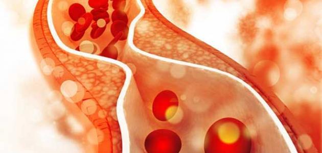 مخاطر الدهون الثلاثية وطرق التخلص منها