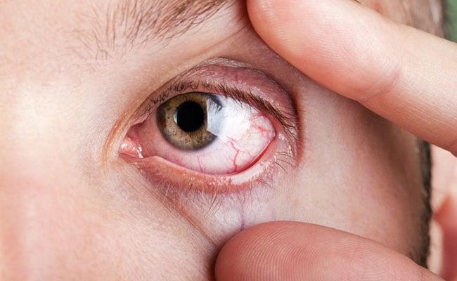 كيفية التخلص من جفاف العين بشكل طبيعي 1