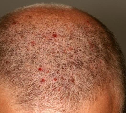 طرق علاج فطريات الرأس