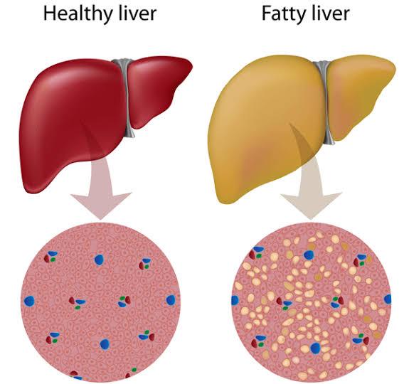 ما هي أعراض تليف الكبد وما أهميته؟