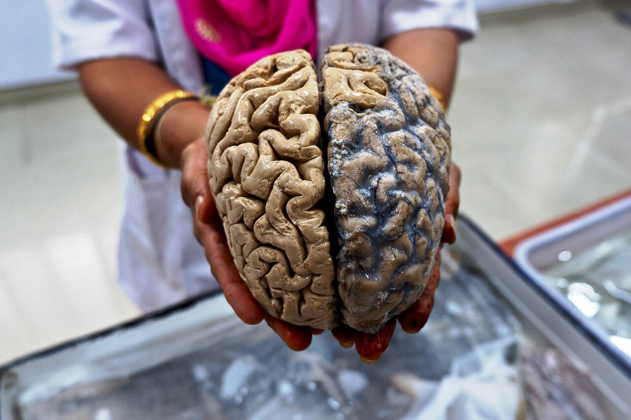 Visitors Can Touch Human Brains At This Indian