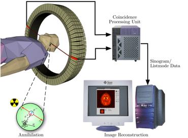 図1:PET装置の概要(Wikipediaより引用)