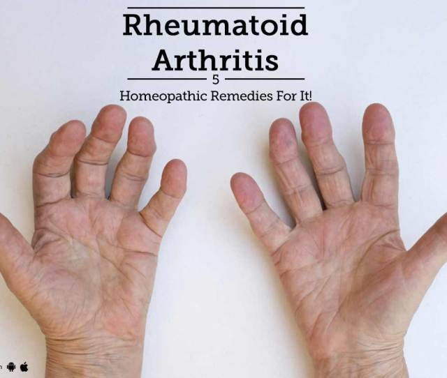 Rheumatoid Arthritis  Homeopathic Remedies For It By Dr Minhaz Nisar Lybrate