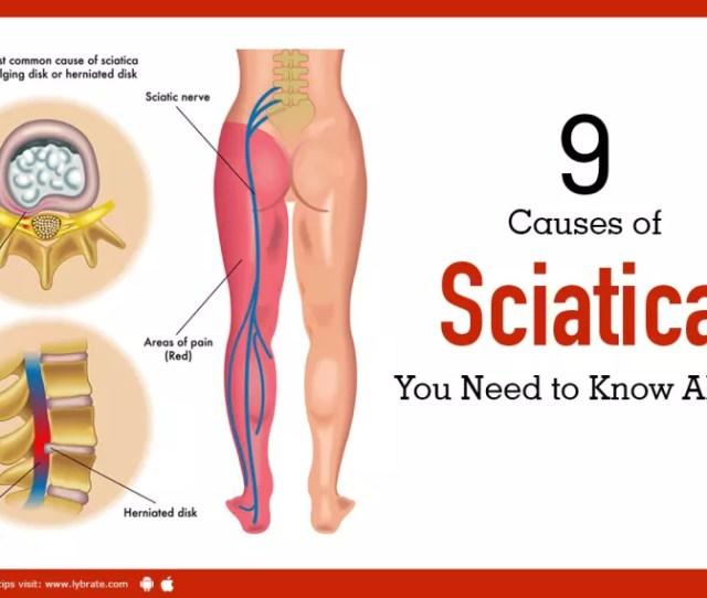 Causes Of Sciatica You Need To Know About