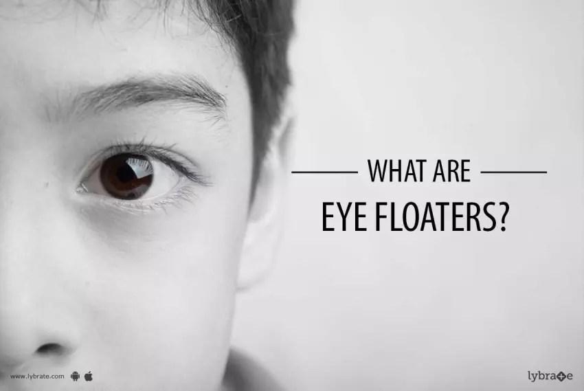 Cure Eye Floaters | Amtmakeup co