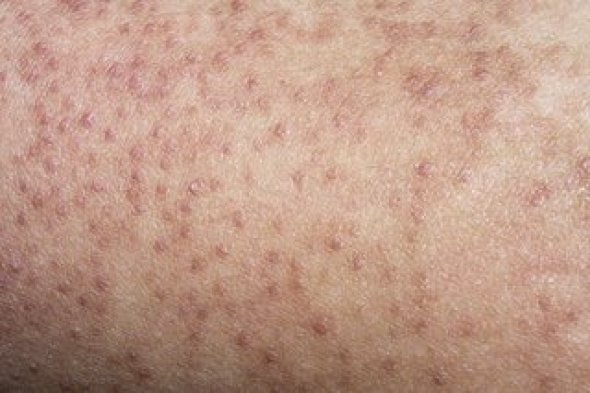 Image result for Keratosis pilaris