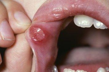 Pendarahan di Lidah- Global Estetik Dental Care