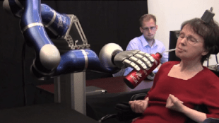 prosthetic-arm-robot-640x363.png