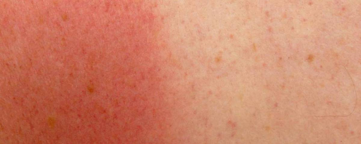 les UV pur soigner la dermatite atopique