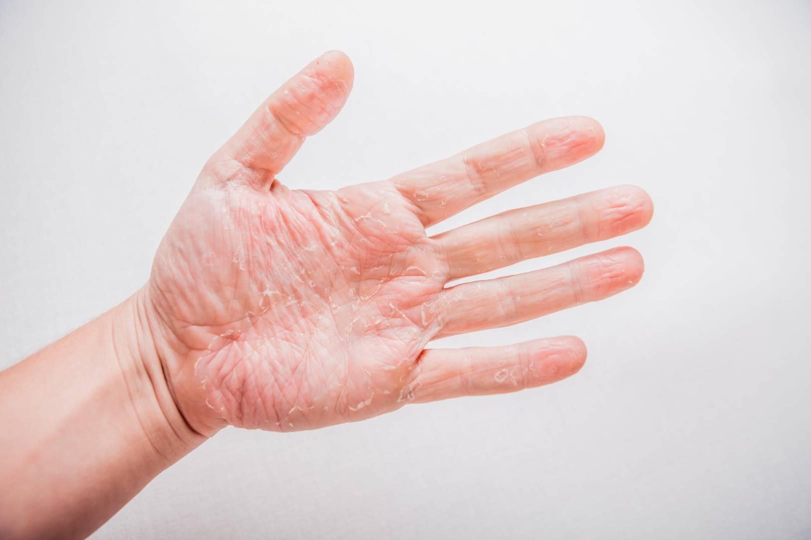 eczema chronique
