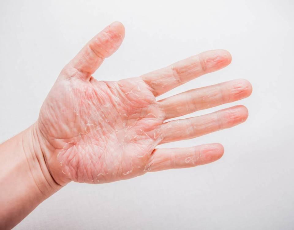 eczéma chronique des mains