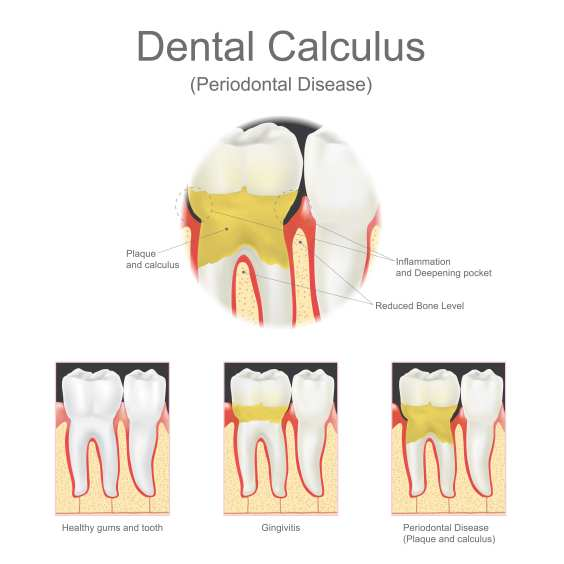 There is often progression with periodontal disease. This progression should be noted with periodontal dental insurance claims.