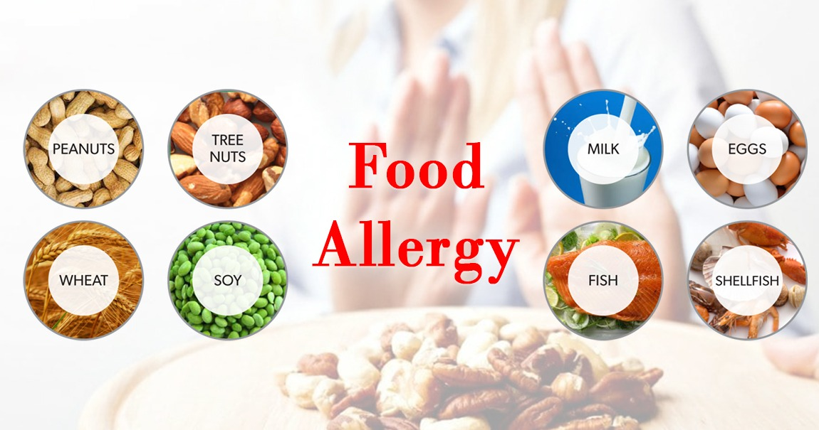 What is Food Allergy | Causes, Treatment & Symptoms, Asthma Hospital