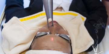 Laser scar removal at Luminisce