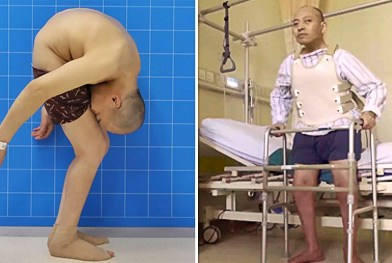 'Folded Man' Stands Up Straight After 28 Years