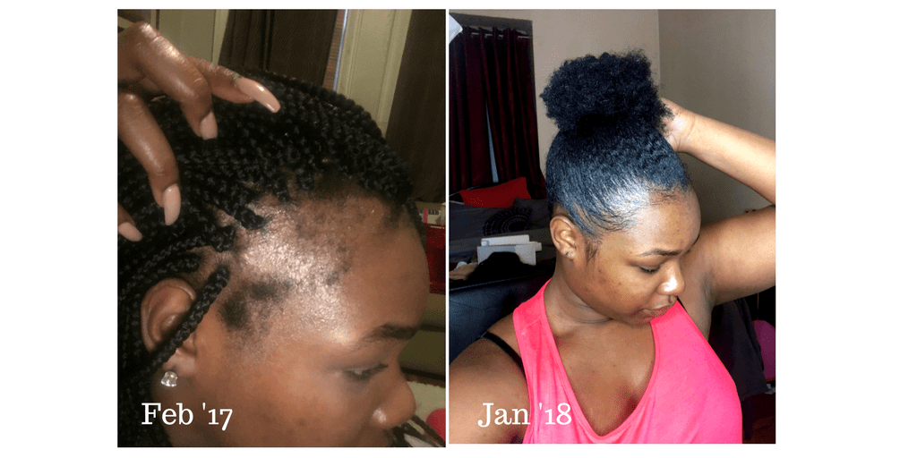 How To ReGrow Edges Naturally