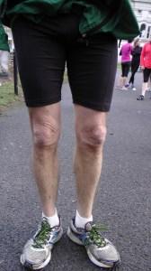 runner's knees