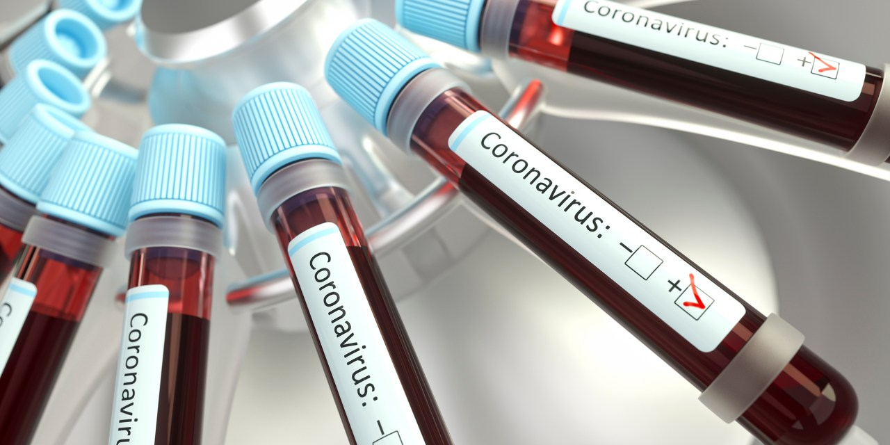 County Public Health Department Confirms Local Patient Being Tested for coronavirus (COVID-19)
